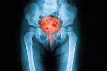 女性 過活動膀胱