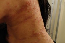 首周り 湿疹